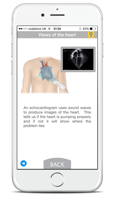 Mobile screenshot showing a diagram and description for 'views of the heart'.